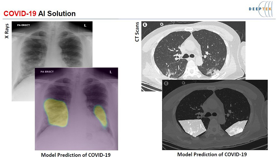 Fig. 1: Samples of COVID-19 AI-based diagnostic images